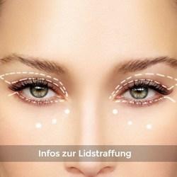 Link zur Augenlidstraffung