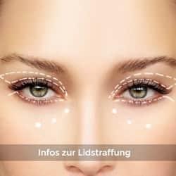 Augenlidstraffung Informationsportal